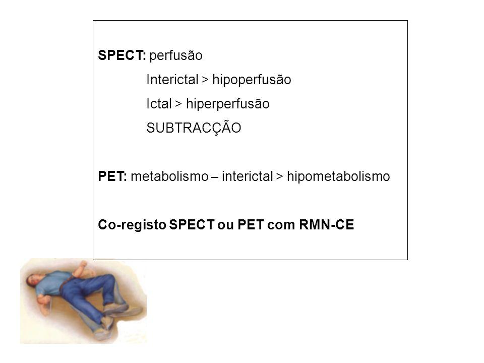 SPECT: perfusão Interictal > hipoperfusão Ictal > hiperperfusão SUBTRACÇÃO PET: metabolismo – interictal > hipometabolismo Co-registo SPECT ou PET com RMN-CE