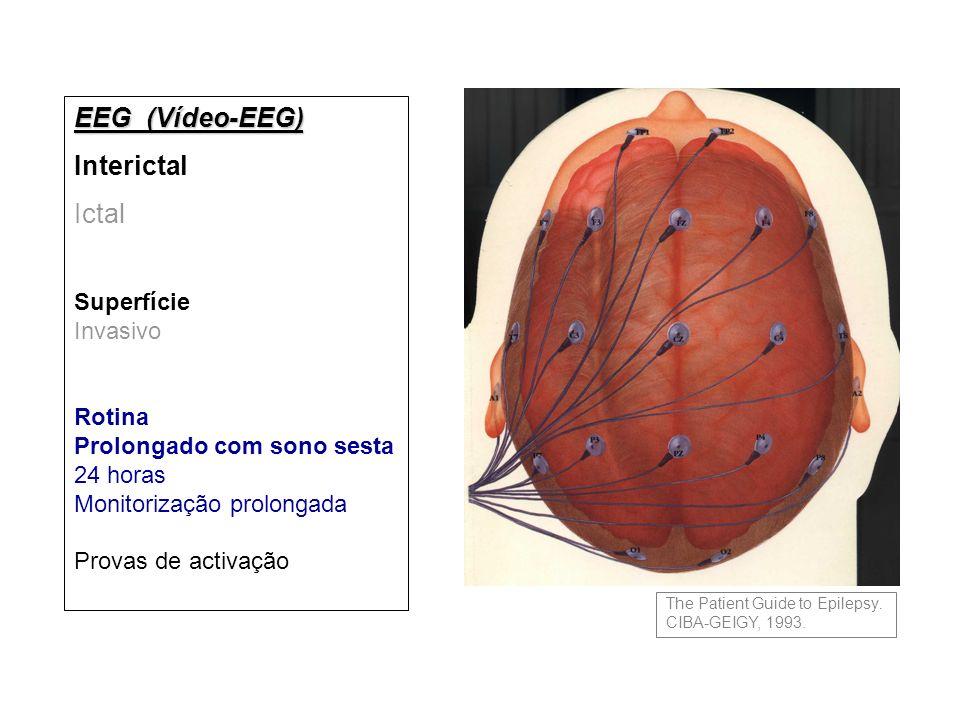 EEG (Vídeo-EEG) Interictal Ictal Superfície Invasivo Rotina Prolongado com sono sesta 24 horas Monitorização prolongada Provas de activação The Patient Guide to Epilepsy.