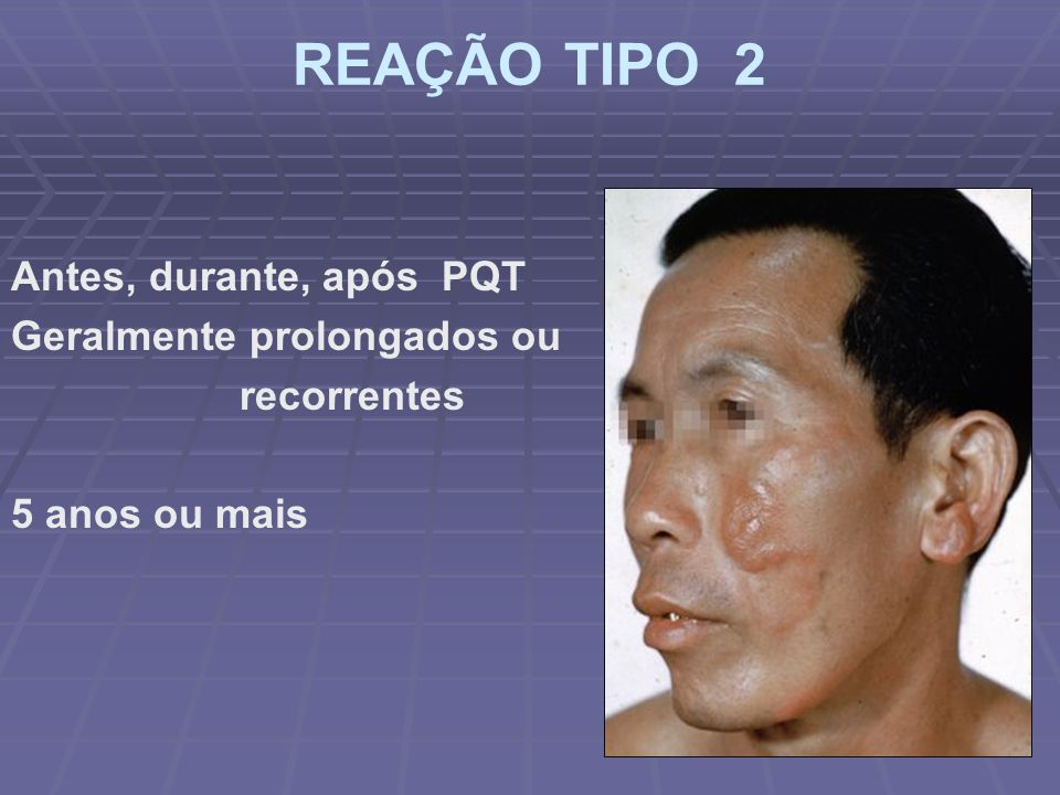 REAÇÃO TIPO 2 Antes, durante, após PQT Geralmente prolongados ou recorrentes 5 anos ou mais