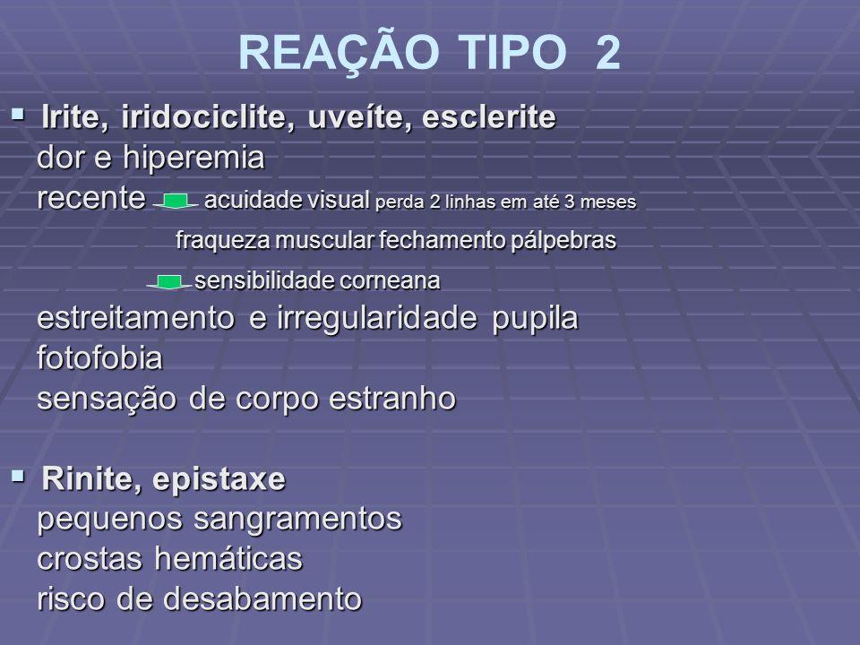 REAÇÃO TIPO 2 Irite, iridociclite, uveíte, esclerite Irite, iridociclite, uveíte, esclerite dor e hiperemia dor e hiperemia recente acuidade visual pe
