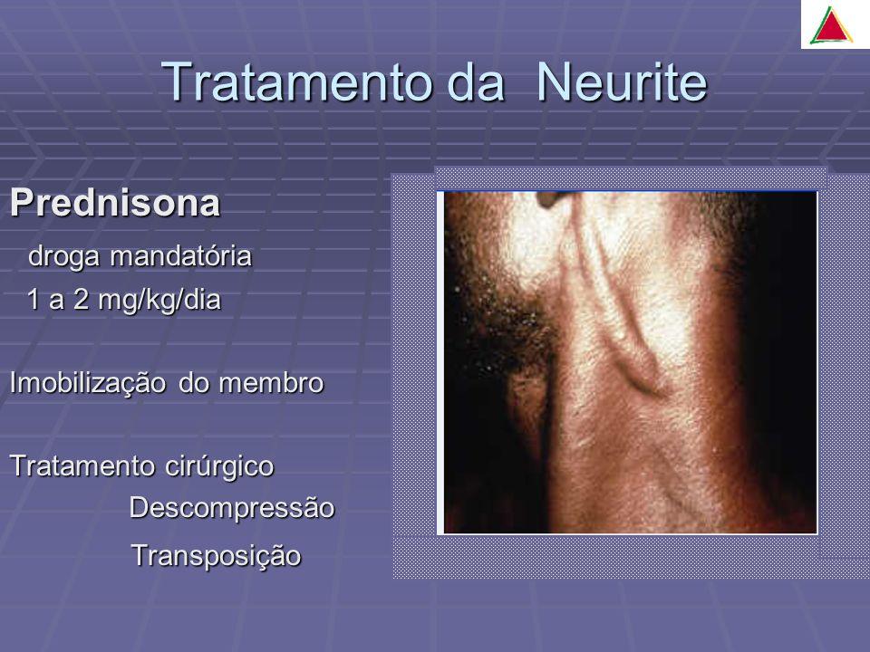 Tratamento da Neurite Prednisona droga mandatória droga mandatória 1 a 2 mg/kg/dia 1 a 2 mg/kg/dia Imobilização do membro Tratamento cirúrgico Descompressão Descompressão Transposição Transposição