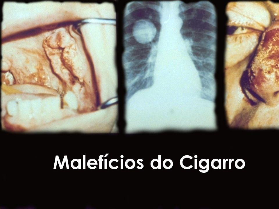 Conteúdo dos Cigarros n Mais de 4.000 substâncias químicas n 43 Cancerígenos n 300 Venenos n Mais de 4.000 substâncias químicas n 43 Cancerígenos n 300 Venenos