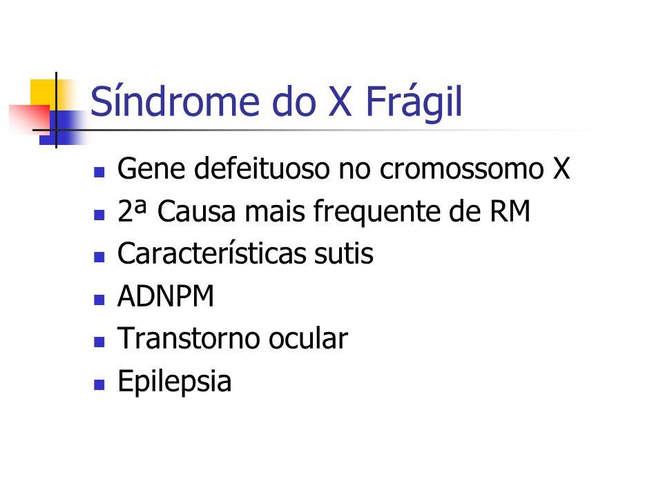 Síndrome do X Frágil Gene defeituoso no cromossomo X 2ª Causa mais frequente de RM Características sutis ADNPM Transtorno ocular Epilepsia