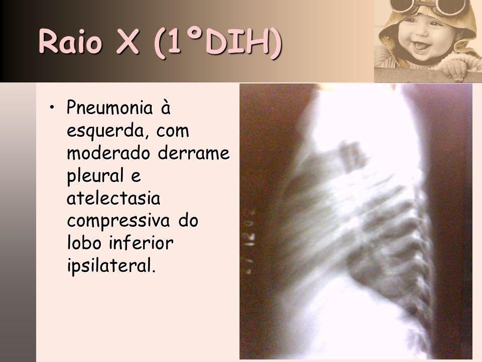 Raio X (1ºDIH) Pneumonia à esquerda, com moderado derrame pleural e atelectasia compressiva do lobo inferior ipsilateral.Pneumonia à esquerda, com mod