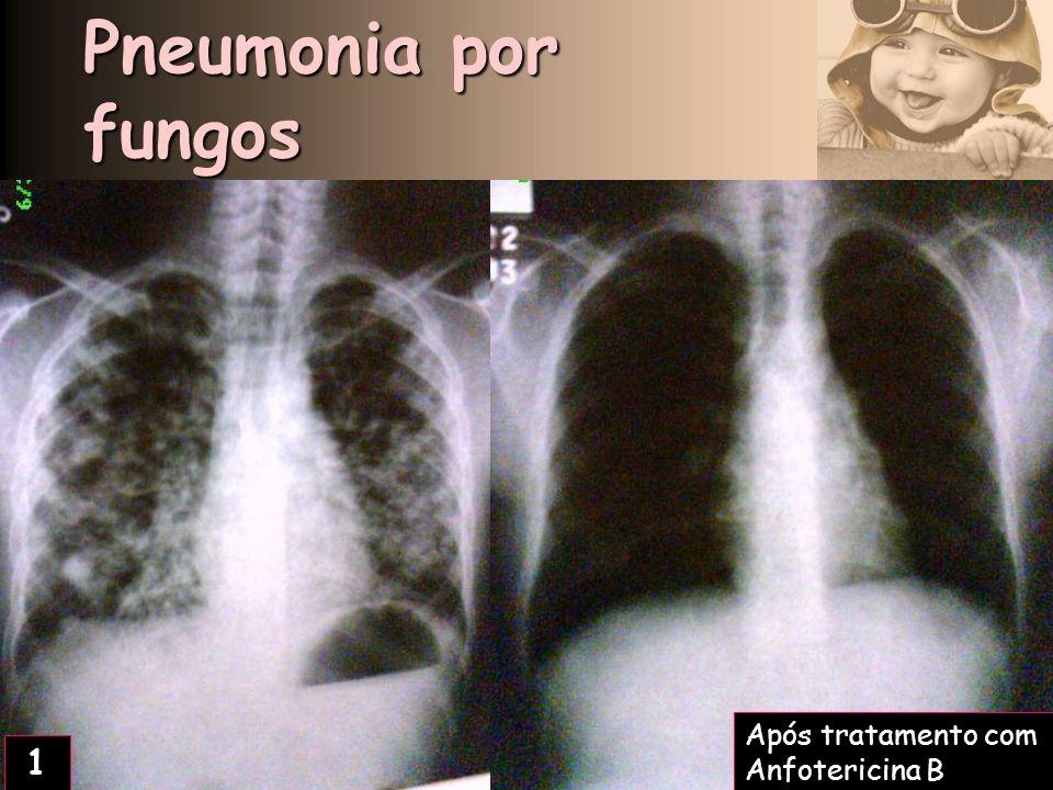 Pneumonia por fungos 2 Após tratamento com Anfotericina B 1