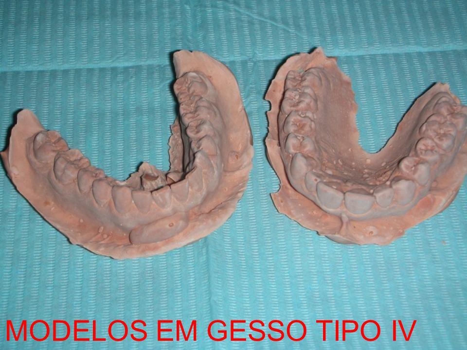 MODELOS EM GESSO TIPO IV