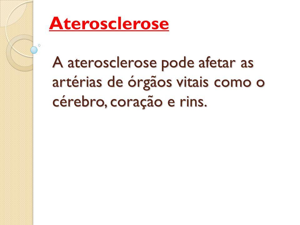 Aterosclerose Aterosclerose é uma doença progressiva e insidiosa, que pode ter seu início na infância mas se manifestar clinicamente apenas na idade adulta.