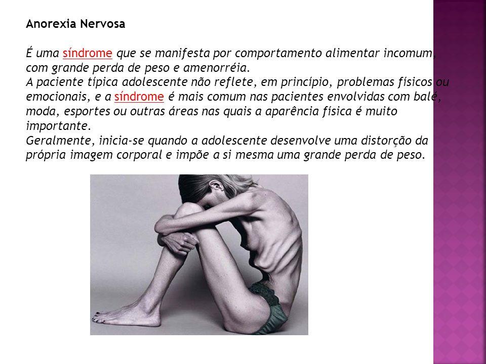Anorexia Nervosa É uma síndrome que se manifesta por comportamento alimentar incomum, com grande perda de peso e amenorréia. A paciente típica adolesc