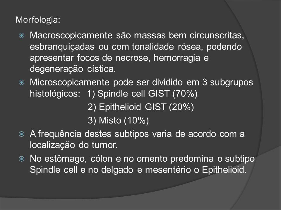 Morfologia: Macroscopicamente são massas bem circunscritas, esbranquiçadas ou com tonalidade rósea, podendo apresentar focos de necrose, hemorragia e