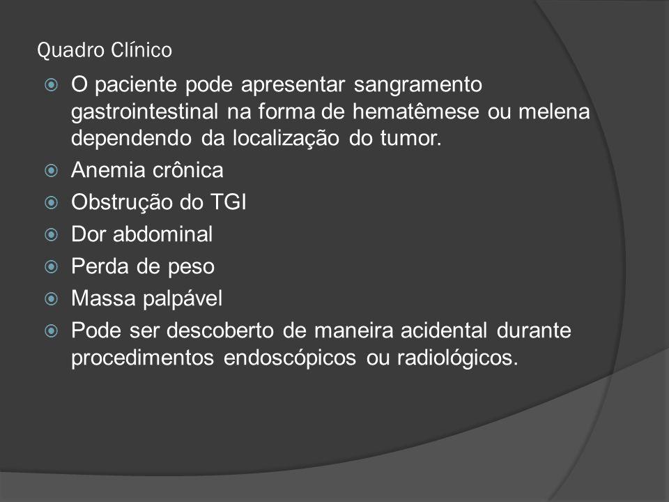 Quadro Clínico O paciente pode apresentar sangramento gastrointestinal na forma de hematêmese ou melena dependendo da localização do tumor. Anemia crô