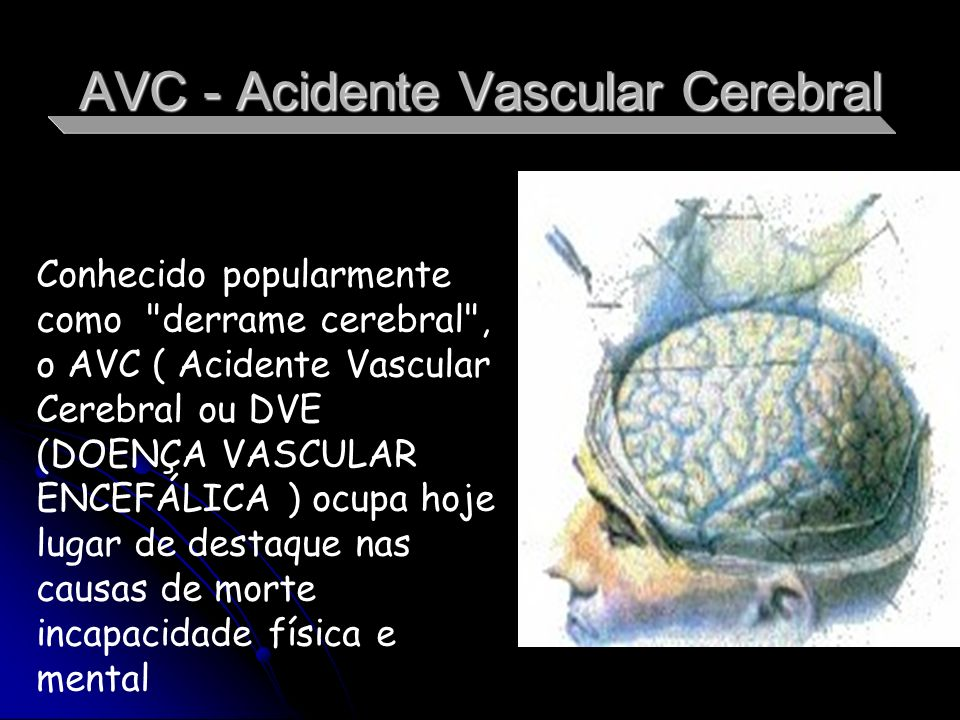 AVC - Acidente Vascular Cerebral Conhecido popularmente como