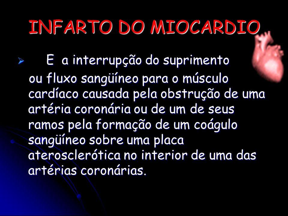 E a interrupção do suprimento E a interrupção do suprimento ou fluxo sangüíneo para o músculo cardíaco causada pela obstrução de uma artéria coronária