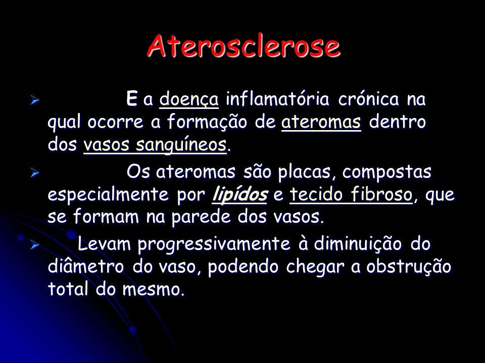 Aterosclerose E a doença inflamatória crónica na qual ocorre a formação de ateromas dentro dos vasos sanguíneos. E a doença inflamatória crónica na qu