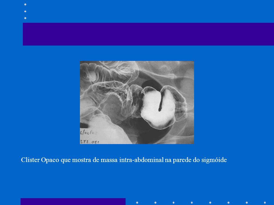 Indicação: Afecções de cólon Diagnóstico de divertículo