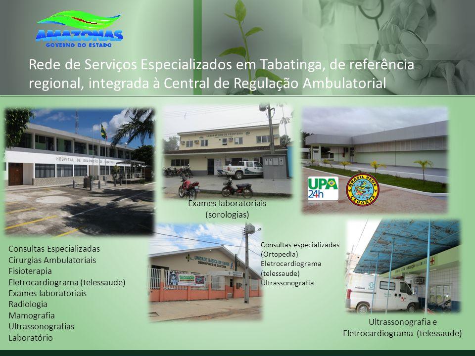 Rede de Serviços Especializados em Tabatinga, de referência regional, integrada à Central de Regulação Ambulatorial Consultas Especializadas Cirurgias