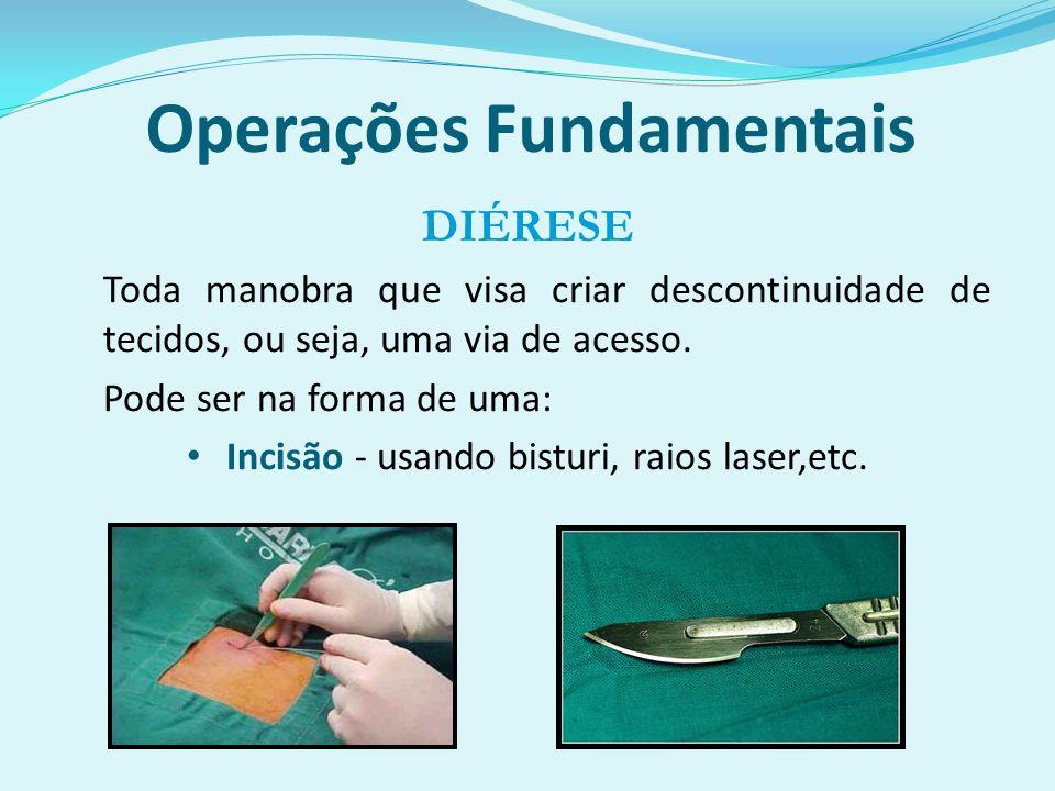 Operações Fundamentais DIÉRESE Toda manobra que visa criar descontinuidade de tecidos, ou seja, uma via de acesso.