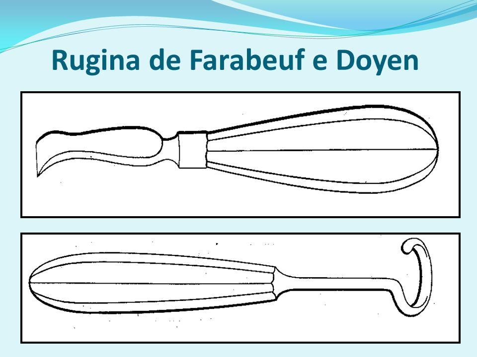 Rugina de Farabeuf e Doyen
