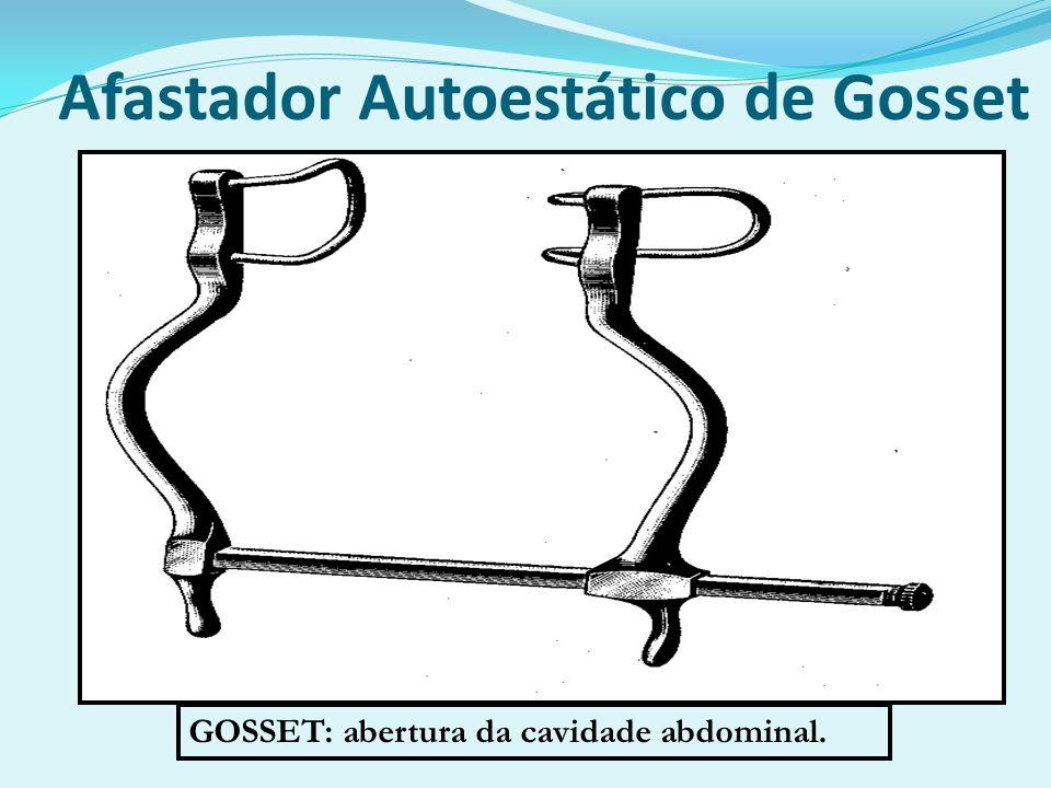 Afastador Autoestático de Gosset GOSSET: abertura da cavidade abdominal.