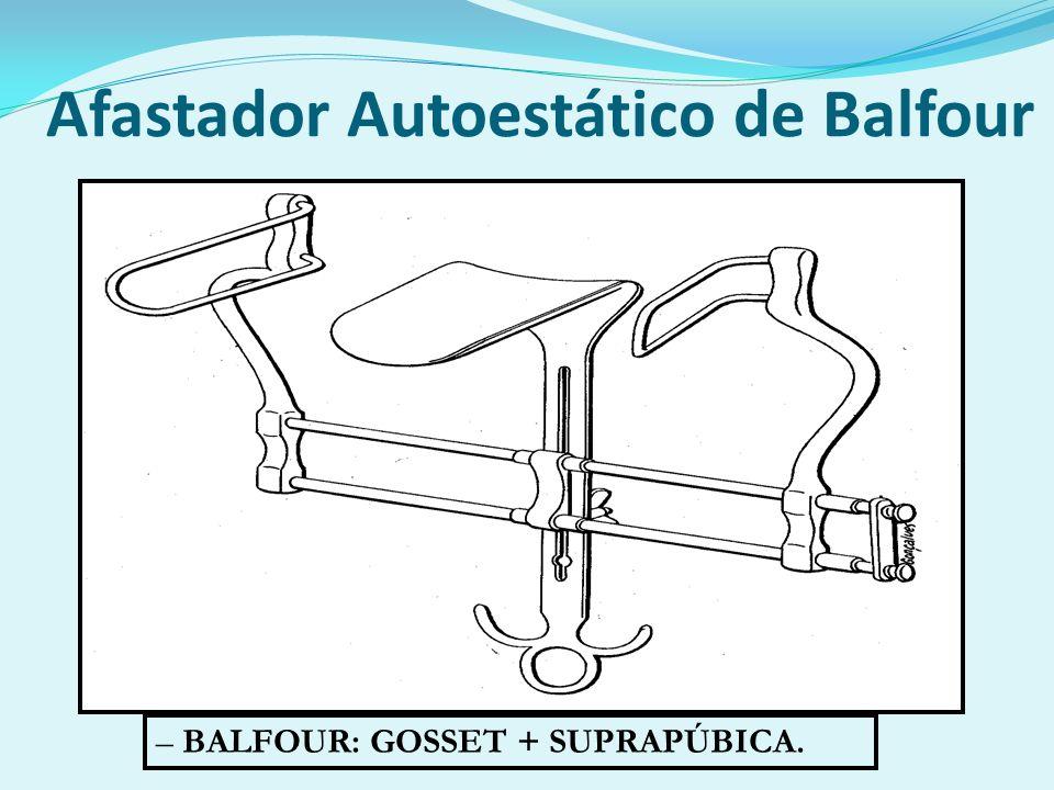 Afastador Autoestático de Balfour – BALFOUR: GOSSET + SUPRAPÚBICA.