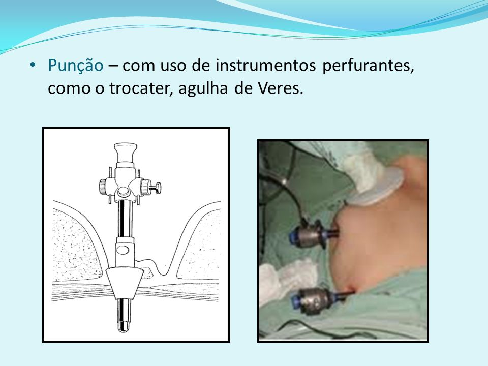 Punção – com uso de instrumentos perfurantes, como o trocater, agulha de Veres.