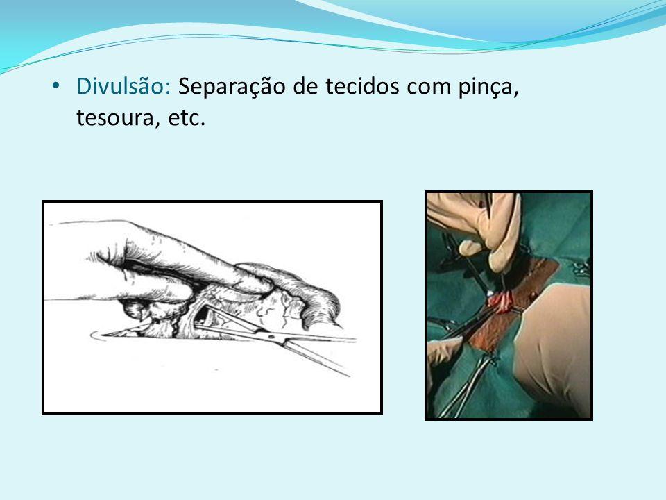 Tesoura Laparoscópica