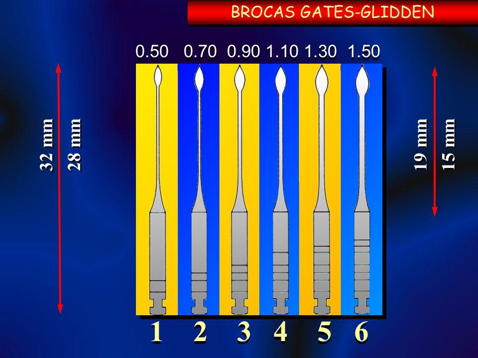 1 2 3 4 5 6 0.50 0.70 0.90 1.10 1.30 1.50 28 mm 32 mm BROCAS GATES-GLIDDEN 15 mm 19 mm