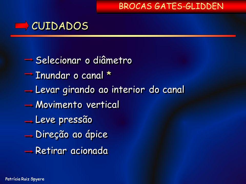 Patrícia Ruiz Spyere BROCAS GATES-GLIDDEN CUIDADOS Selecionar o diâmetro Inundar o canal * Selecionar o diâmetro Inundar o canal * Levar girando ao in