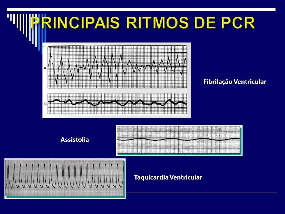 Taquicardia Ventricular Assistolia Fibrilação Ventricular