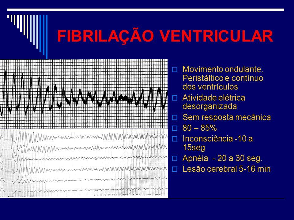 FIBRILAÇÃO VENTRICULAR Movimento ondulante. Peristáltico e contínuo dos ventrículos Atividade elétrica desorganizada Sem resposta mecânica 80 – 85% In