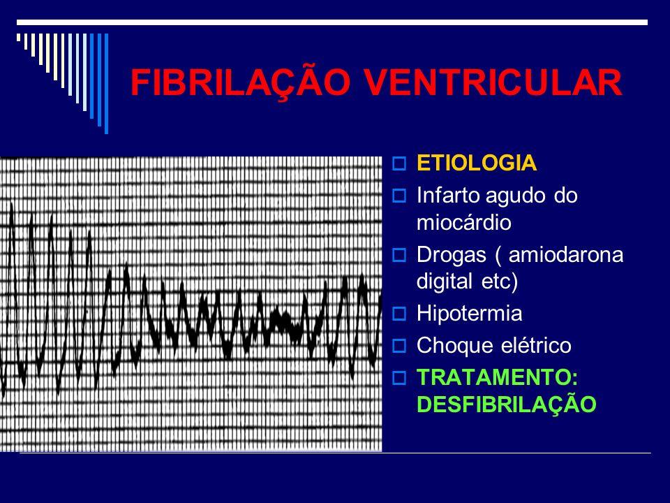 FIBRILAÇÃO VENTRICULAR ETIOLOGIA Infarto agudo do miocárdio Drogas ( amiodarona digital etc) Hipotermia Choque elétrico TRATAMENTO: DESFIBRILAÇÃO