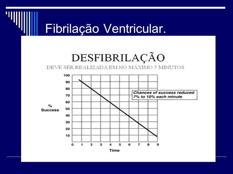 Fibrilação Ventricular.