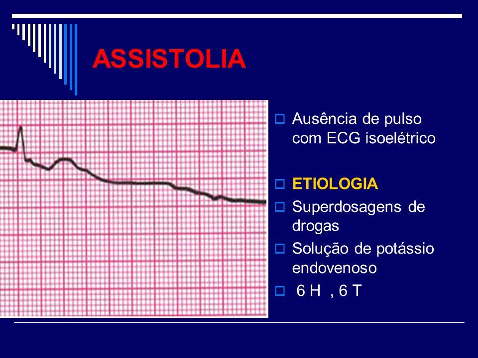 ASSISTOLIA Ausência de pulso com ECG isoelétrico ETIOLOGIA Superdosagens de drogas Solução de potássio endovenoso 6 H, 6 T