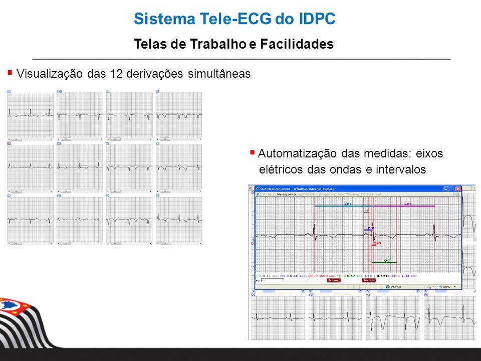 Sistema Tele-ECG do IDPC Telas de Trabalho e Facilidades Visualização das 12 derivações simultâneas Automatização das medidas: eixos elétricos das ond