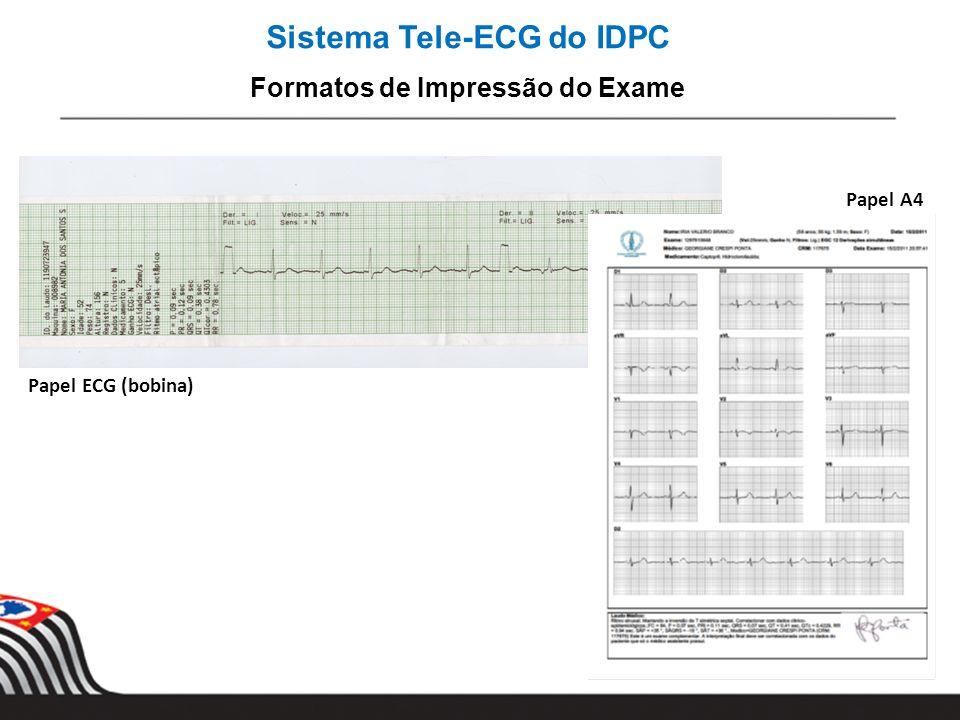 Sistema Tele-ECG do IDPC Formatos de Impressão do Exame Papel A4 Papel ECG (bobina)