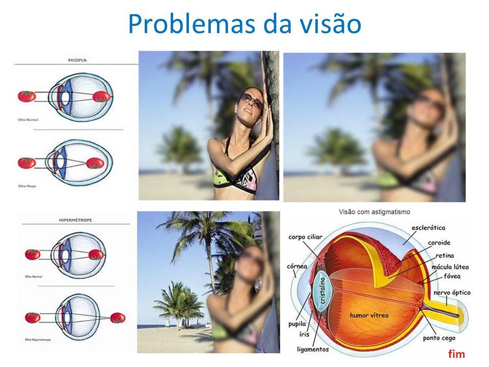 Problemas da visão fim