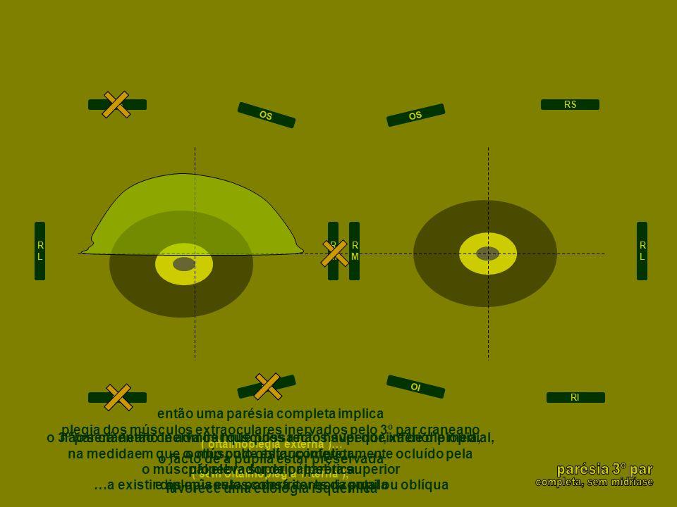 então uma parésia completa implica plegia dos músculos extraoculares inervados pelo 3º par craneano ( oftalmoplegia externa )… o facto de a pupila est