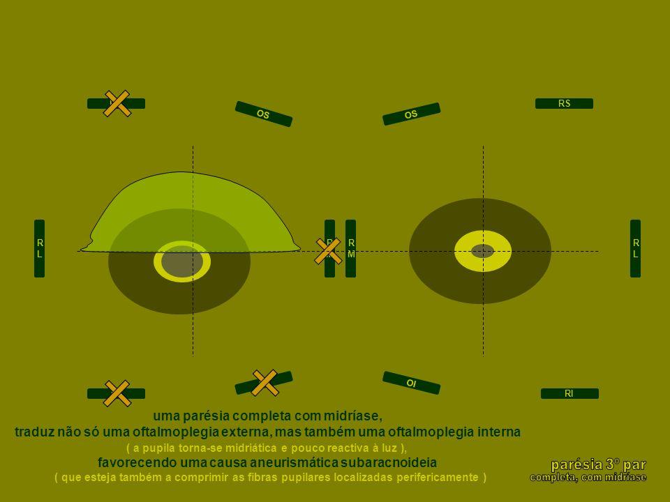 RLRL RMRM RMRM RLRL RS RI RS RI OI OS OI OS uma parésia completa com midríase, traduz não só uma oftalmoplegia externa, mas também uma oftalmoplegia i