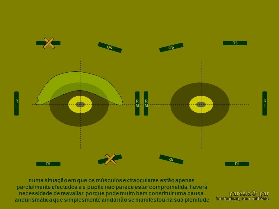 RLRL RMRM RMRM RLRL RS RI RS RI OI OS OI OS numa situação em que os músculos extraoculares estão apenas parcialmente afectados e a pupila não parece e