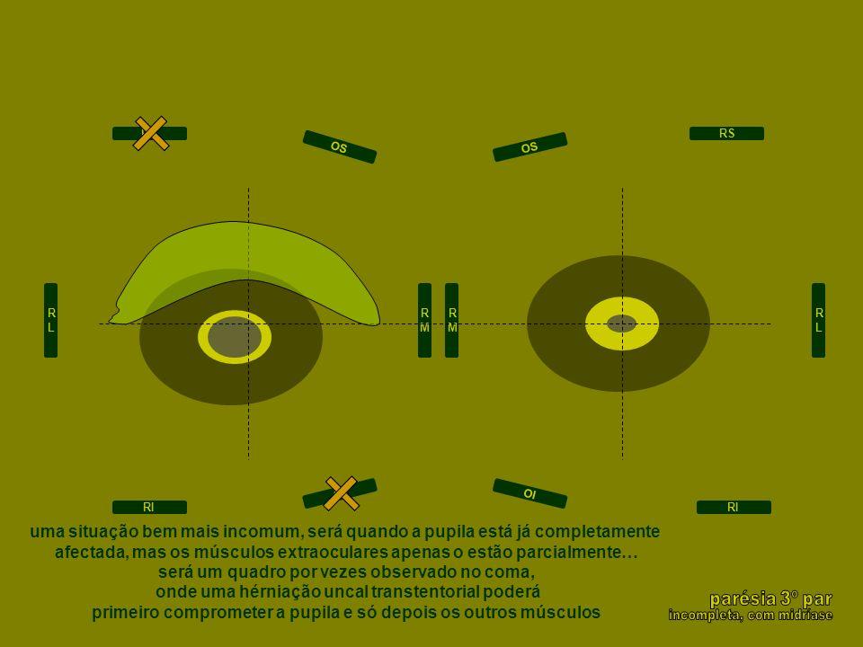 RLRL RMRM RLRL RS RI RS RI OI OS OI OS RMRM uma situação bem mais incomum, será quando a pupila está já completamente afectada, mas os músculos extrao