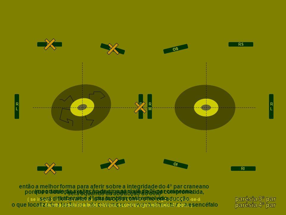 então a melhor forma para aferir sobre a integridade do 4º par craneano será aquando da abducção do olho ( se íntegro, a capacidade de inciclotorsão m