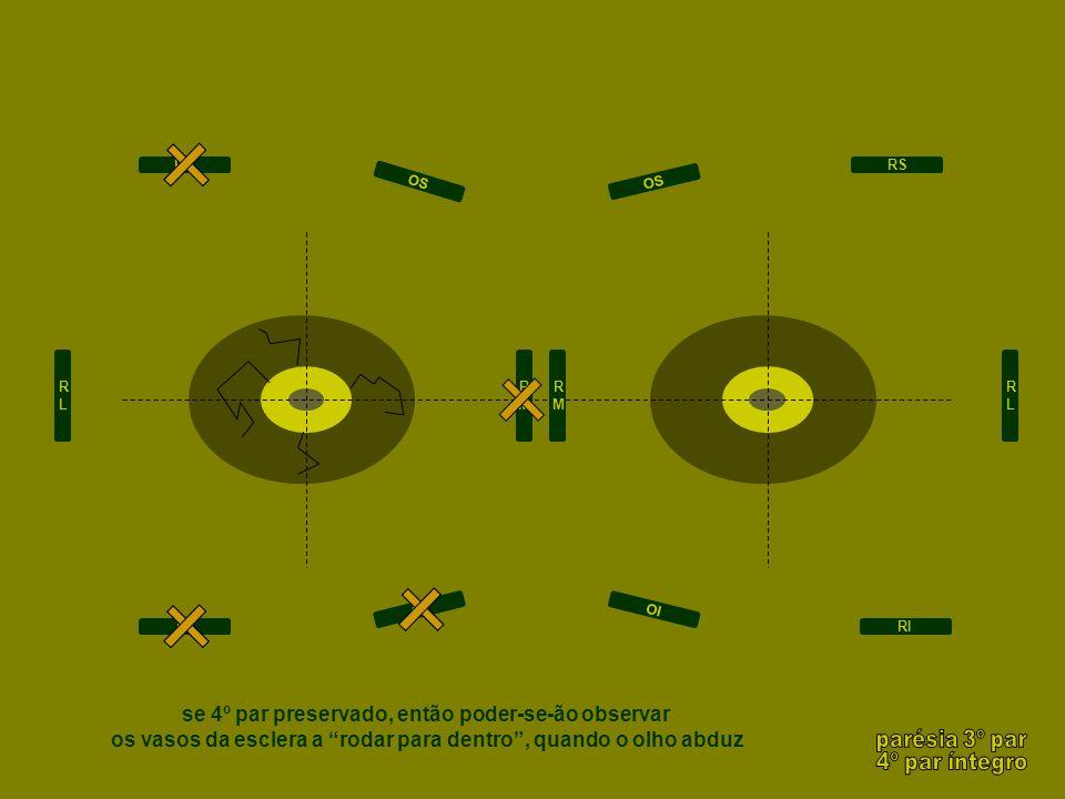 RLRL RMRM RMRM RLRL RS RI RS RI OI OS OI OS se 4º par preservado, então poder-se-ão observar os vasos da esclera a rodar para dentro, quando o olho ab