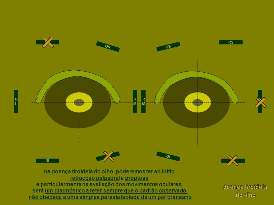 RLRL RMRM RMRM RLRL RS RI RS RI OI OS OI OS na doença tiroideia do olho, poderemos ter ab initio retracção palpebral e proptose e particularmente na a