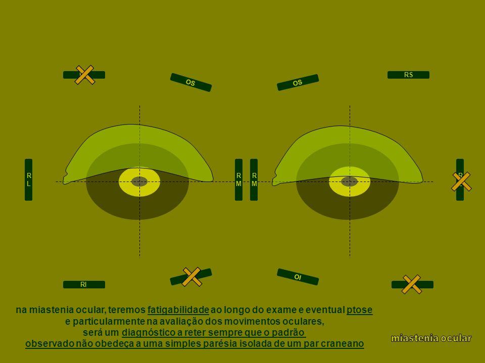 RLRL RMRM RMRM RLRL RS RI RS RI OI OS OI OS na miastenia ocular, teremos fatigabilidade ao longo do exame e eventual ptose e particularmente na avalia