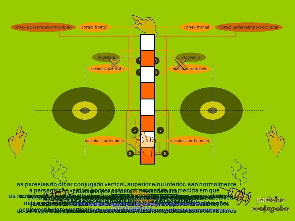 as parésias do olhar conjugado vertical, superior e/ou inferior, são normalmente causadas por patologia mesencefálica, ( por exemplo, a paralisia supr