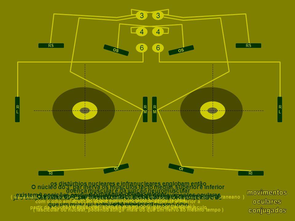 então a melhor forma para aferir sobre a integridade do 4º par craneano será aquando da abducção do olho ( se íntegro, a capacidade de inciclotorsão mantém-se, e logo constatar-se-á um movimento inciclotorsional dos vasos sanguíneos escleróticos ) importante na avaliação de uma parésia do 3º par craneano, saber se o 4º par também está envolvido, o que localizaria a lesão no seio cavernoso ou eventualmente no mesencéfalo porque a aducção ( recto medial ) está normalmente comprometida, será difícil avaliar a infraducção com o olho em aducção ( da responsabilidade do oblíquo superior, inervado pelo 4º par ) RLRL RMRM RMRM RLRL RS RI RS RI OI OS OI OS