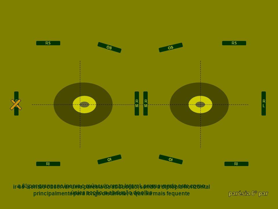RLRL RMRM RMRM RLRL RS RI RS RI OI OS OI OS ir-se-á então observar uma parésia da abducção, sendo a diplopia horizontal principalmente para longa dist
