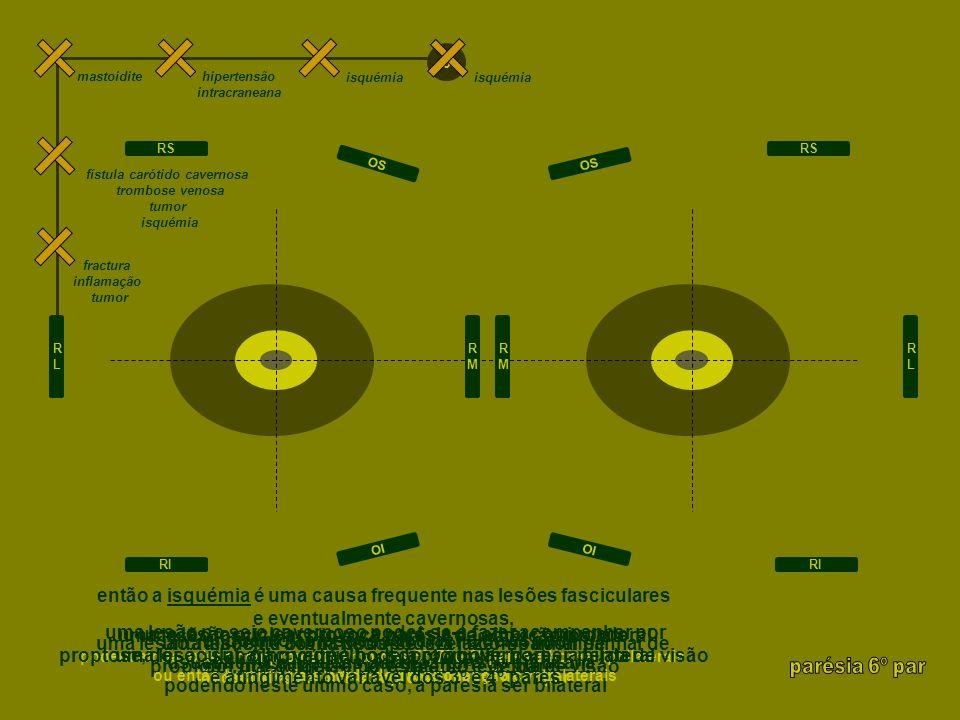 uma lesão subaracnóideia faz-se acompanhar por cefaleia de forte intensidade, sinais meníngeos e midríase uma lesão no seio cavernoso poder-se-á fazer acompanhar por proptose, dor ocular, olho vermelho, sopro ocular, horner, perda de visão, e atingimento variável dos 4º e 6º pares uma lesão na órbita pode-se fazer acompanhar de proptose, dor ocular, olho vermelho e perda de visão então a isquémia é uma causa frequente nas lesões nucleares, fasciculares e eventualmente cavernosas, enquanto as lesões subaracnoideias são usualmente causadas por ruptura de aneurisma, havendo usualmente neste último caso midríase… a herniação uncal também pode promover a parésia uma lesão nuclear provoca ptose bilateral, midríase bilateral, parésia da supraducção contralateral e eventual parésia do olhar conjugado e oftalmoplegia internuclear uma lesão fascicular poderá fazer-se associar por ataxia contralateral, hemiparésia contralateral ou por tremor contralateral uma lesão pericavernosa promove usualmente primeiro a midríase e depois as parésias dos músculos extraoculares RLRL RMRM RMRM RLRL RS RI RS RI OI OS OI OS 3 isquémia hemorragia subaracnóideia herniação uncal fístula carótido cavernosa, trombose venosa, tumor, isquémia fractura, inflamação, tumor 3