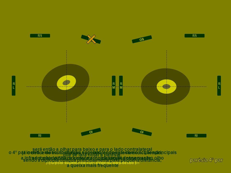uma lesão nuclear provoca usualmente parésia bilateral associadamente poderão existir parésia do olhar conjugado, oftalmoplegia internuclear, horner, marcus gunn uma lesão fascicular provoca usualmente parésia bilateral associadamente poderão existir parésia do olhar conjugado, oftalmoplegia internuclear, horner, marcus gunn uma lesão subaracnóideia provoca usualmente parésia bilateral, deslocando-se o queixo para baixo então o trauma é uma causa frequente mesmo que de pequena intensidade seguidamente, o estrabismo congénito pode voltar a manifestar-se de novo em adulto, podendo existir um tilt contralateral da cabeça a isquémia poderá também ser causadora uma lesão no seio cavernoso poder-se-á fazer acompanhar por proptose, dor ocular, olho vermelho, sopro ocular, horner, perda de visão, e atingimento variável dos 3º e 6º pares uma lesão na órbita pode-se fazer acompanhar de proptose, dor ocular, olho vermelho e perda de visão RLRL RMRM RMRM RLRL RS RI RS RI OI OS OI OS 4 traumatismo isquémia traumatismo isquémia traumatismo fístula carótido cavernosa trombose venosa tumor isquémia fractura inflamação tumor