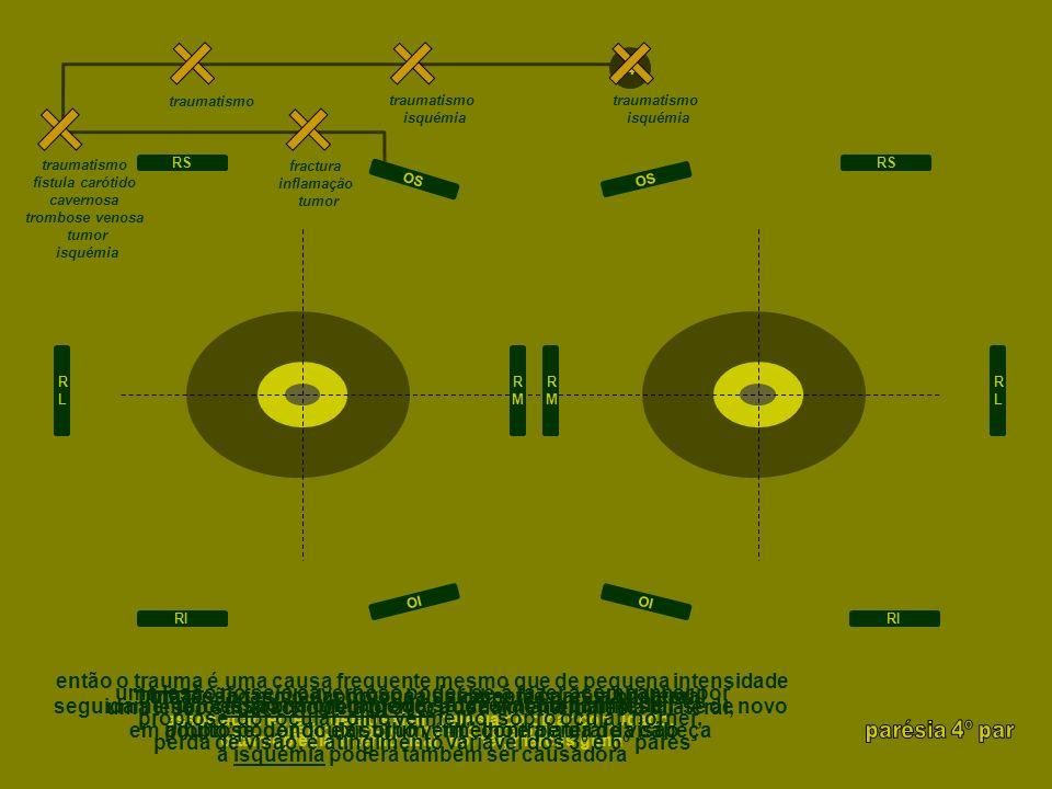 RLRL RMRM RMRM RLRL RS RI RS RI OI OS OI OS na miastenia ocular, teremos fatigabilidade ao longo do exame e eventual ptose e particularmente na avaliação dos movimentos oculares, será um diagnóstico a reter sempre que o padrão observado não obedeça a uma simples parésia isolada de um par craneano