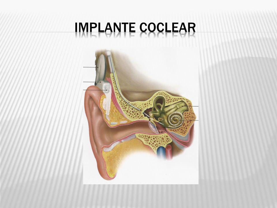 O implante coclear multicanal é um dispositivo eletrônico dividido em componente interno e externo.